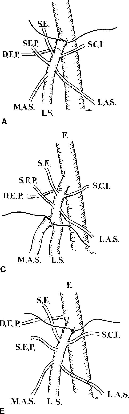 Figure 1 from Recurrent varicose veins - Semantic Scholar