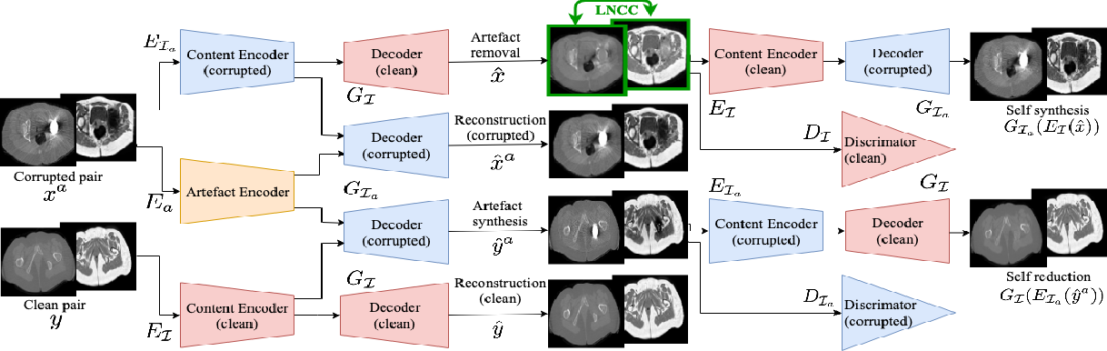 Figure 1 for Combining multimodal information for Metal Artefact Reduction: An unsupervised deep learning framework