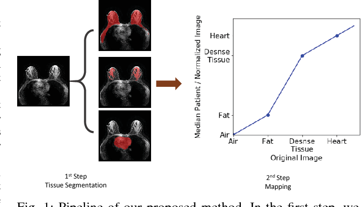 Figure 1 for Automatic deep learning-based normalization of breast dynamic contrast-enhanced magnetic resonance images