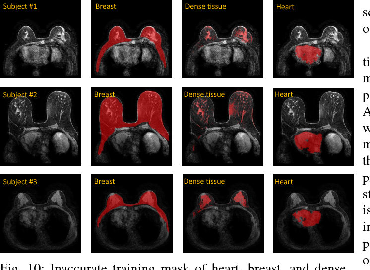 Figure 2 for Automatic deep learning-based normalization of breast dynamic contrast-enhanced magnetic resonance images