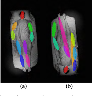 Figure 4 for In-Bed Pose Estimation: Deep Learning with Shallow Dataset