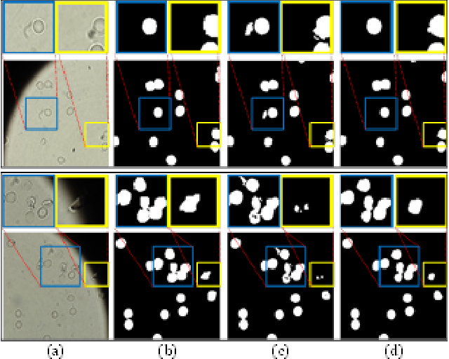 Figure 4 for Image Segmentation and Classification for Sickle Cell Disease using Deformable U-Net