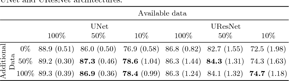 Figure 3 for GAN Augmentation: Augmenting Training Data using Generative Adversarial Networks