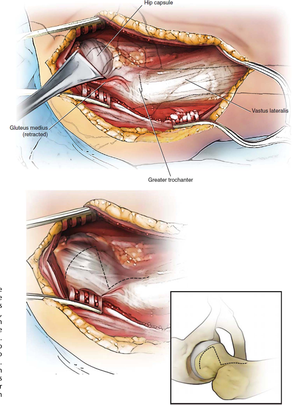 Endosteal Biologic Augmentation for Surgical Fixation of Displaced ...