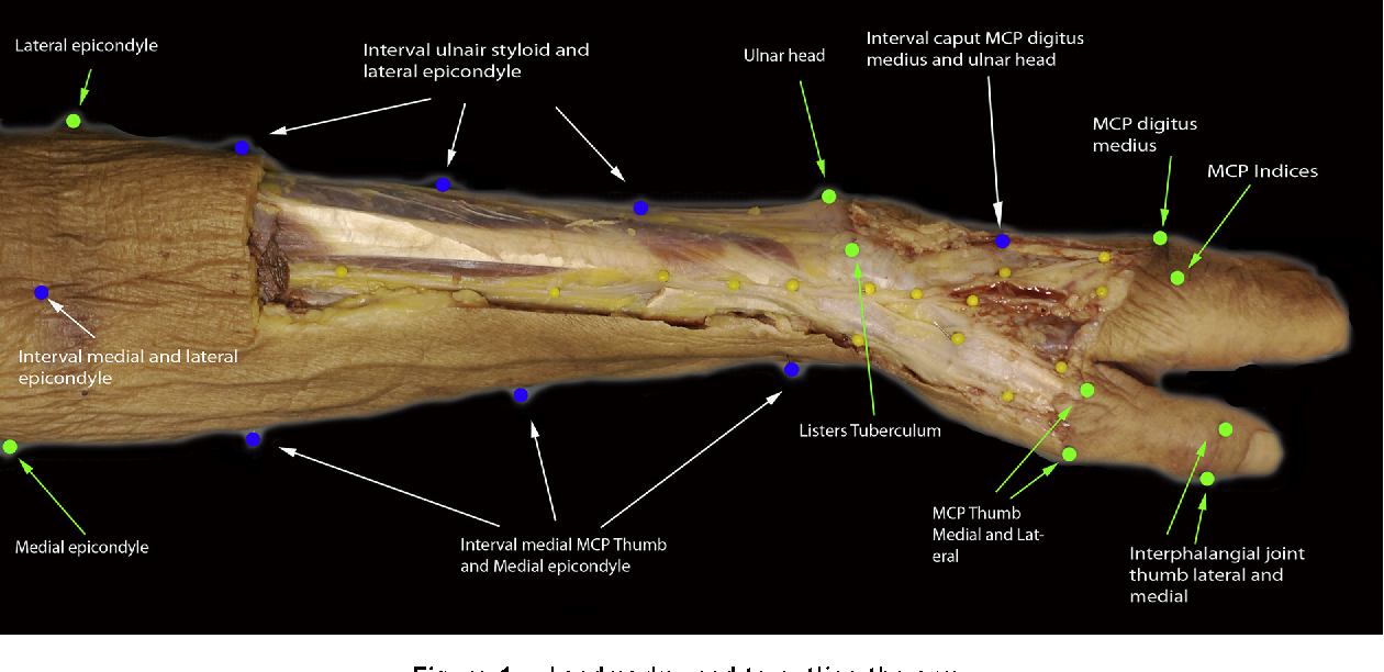 The anatomical relationship of the superficial radial nerve and the ...