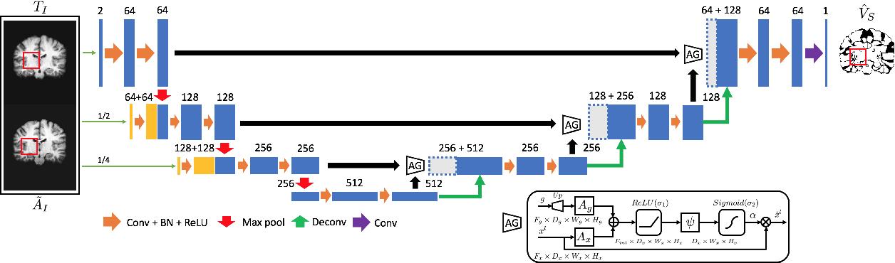 Figure 1 for VoteNet+ : An Improved Deep Learning Label Fusion Method for Multi-atlas Segmentation