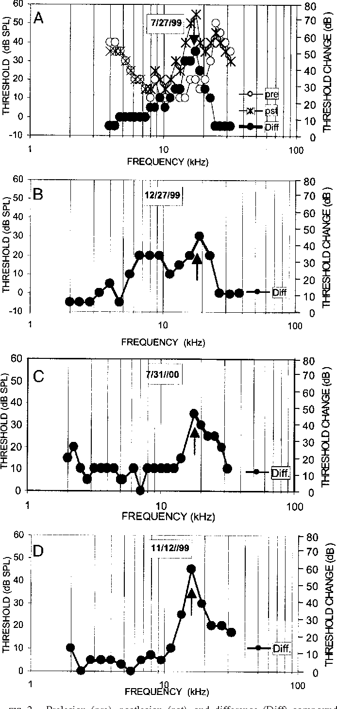"""FIG. 2. Prelesion (pre), postlesion (pst), and difference (Diff) compound action potential (CAP) audiograms from 4 cats used in this study. The difference audiograms indicate 30- to 35-dB elevations in thresholds (""""notches"""") produced by restricted ( 1 mm) spiral ganglion lesions centered at 5 mm from its basal end. These notches (1) occur across restricted frequency ranges and consistently reach their maxima at frequencies between 15–20 kHz."""
