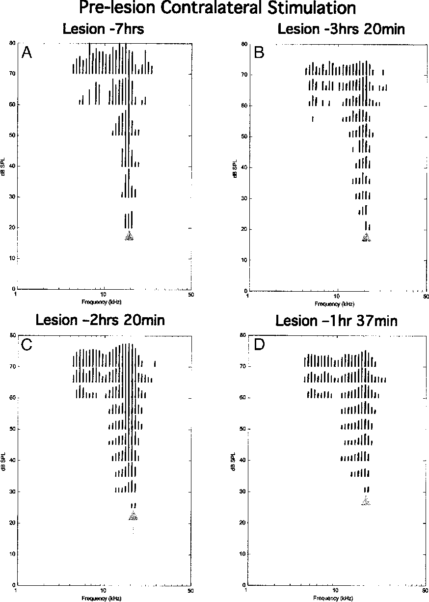 FIG. 3. A–D: prelesion response areas recorded using contralateral tones from a fixed in-dwelling electrode (6 in cat 7/31/00). RAs were recorded at successive intervals. A: 7 h prior to the lesion immediately after electrodes had been cemented in place. B: 3 h 20 min prior to the lesion. C: 2 h 20 min prior to the lesion. D: 1 h 37 min prior to the lesion. The gray arrows indicate the estimated characteristic frequency (CF) and threshold in each response area (RA).