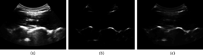 Fig. 3. Original paramedian US image of a randomly selected volunteer's (#2) laminae of the L3-L4 vertebrae at 7 cm depth (a), the bone enhanced image using phase symmetry (b) and the weighted sum of the enhanced and the original image (c).