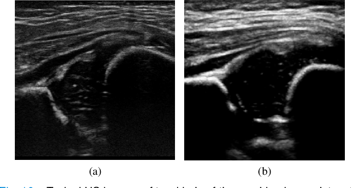 Figure 2 for Joint Landmark and Structure Learning for Automatic Evaluation of Developmental Dysplasia of the Hip