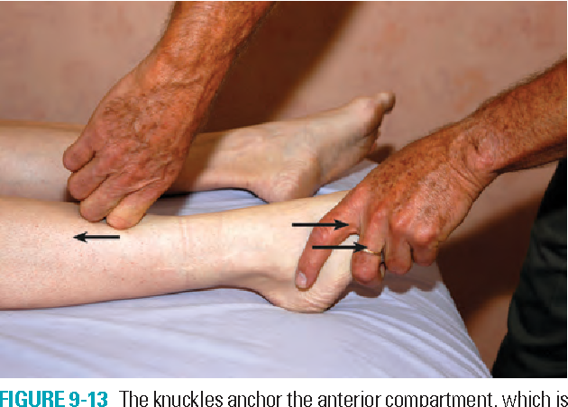 FIGURE 9-13 The knuckles anchor the anterior compartment, which is then stretched by plantar flexing the ankle.