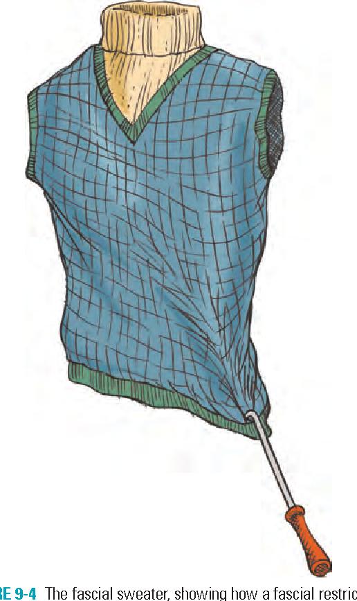 figure 9-4