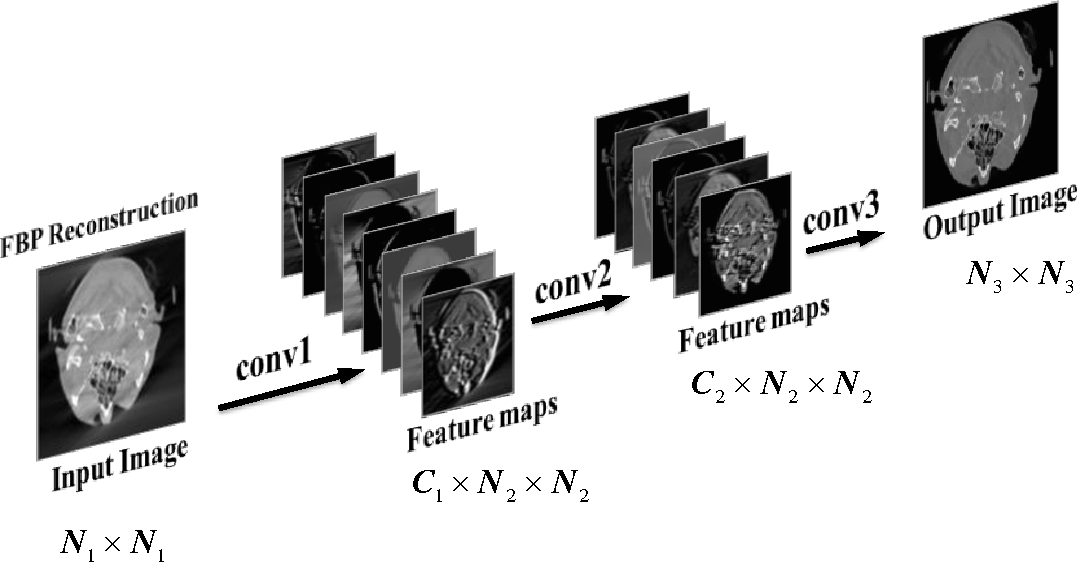 Figure 3 for Image Prediction for Limited-angle Tomography via Deep Learning with Convolutional Neural Network