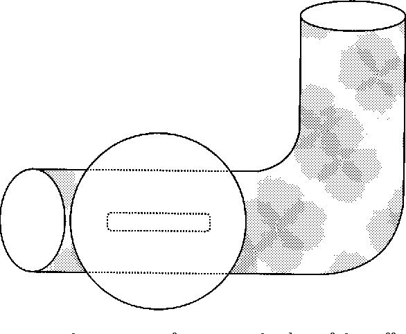 Tracheostomy Tube Enabling Speech During Mechanical Ventilation