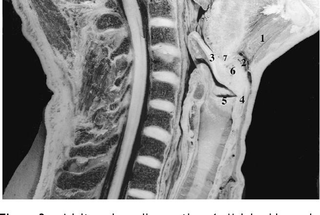 Figure 3 from The laryngeal fat body. - Semantic Scholar