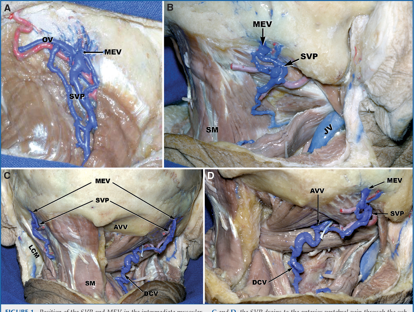Anatomy of the mastoid emissary vein and venous system of the ...