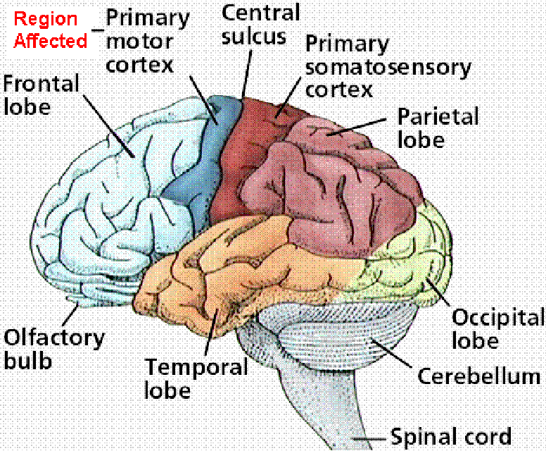 Figure 12 From On Electrocorticography Ecog Based Brain
