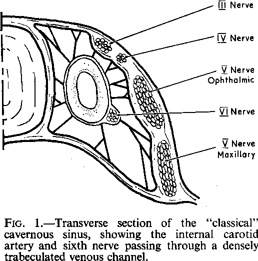 Figure 1 From The Cavernous Sinus