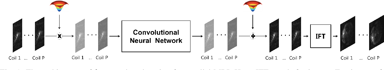Figure 1 for k-Space Deep Learning for Parallel MRI: Application to Time-Resolved MR Angiography