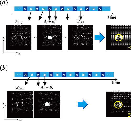 Figure 2 for k-Space Deep Learning for Parallel MRI: Application to Time-Resolved MR Angiography