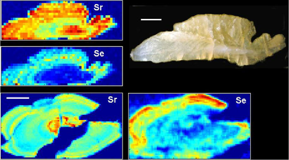 Figure 1 from Selenium detected in fish otoliths: a novel tracer for