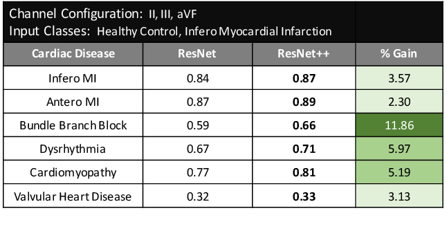 Figure 3 for Generalization Studies of Neural Network Models for Cardiac Disease Detection Using Limited Channel ECG