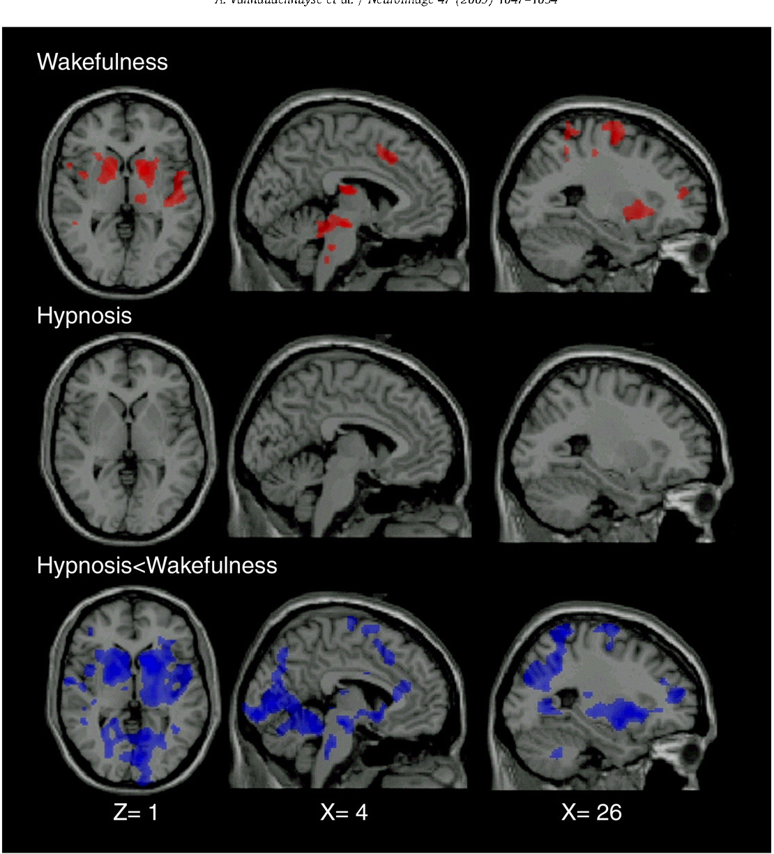 Figure 3 from Pain and non-pain processing during hypnosis: A