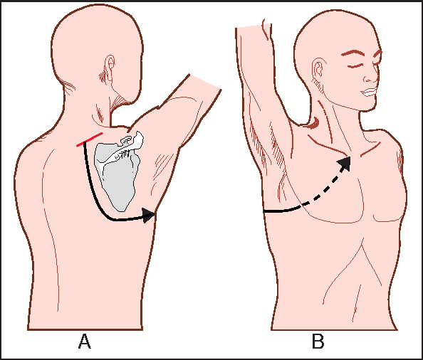 Figure 2 From Surgical Management Of Superior Sulcus Tumors