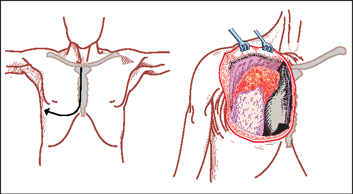 Figure 5 From Surgical Management Of Superior Sulcus Tumors