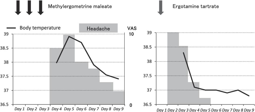 Fig. 1 Time course of meningitis.