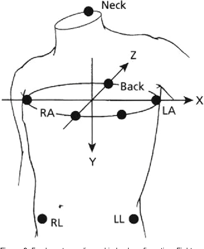 Figure 6 from Practice standards for electrocardiographic monitoring