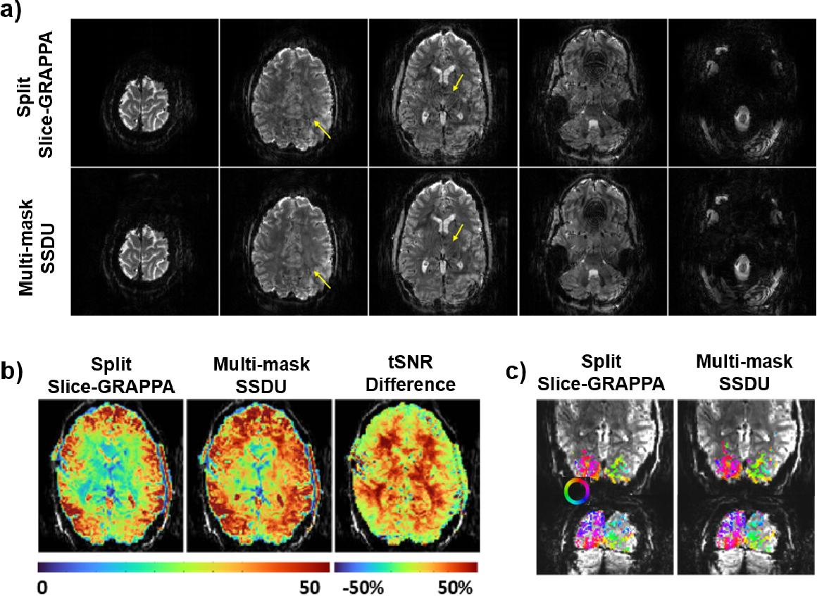 Figure 4 for Unsupervised Deep Learning Methods for Biological Image Reconstruction