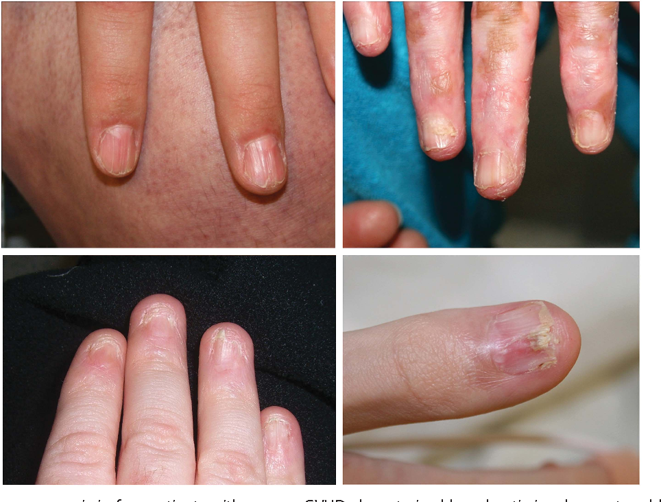 Nail dystrophy, edema, and eosinophilia: harbingers of severe ...