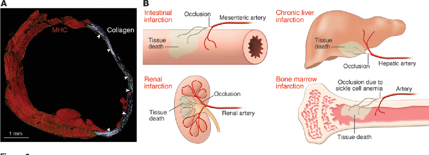 Figure 2 From Regenerating New Heart With Stem Cells Semantic Scholar