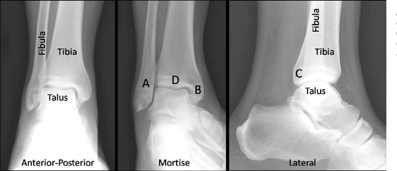 Figure 1 From Management Of Ankle Fractures Semantic Scholar