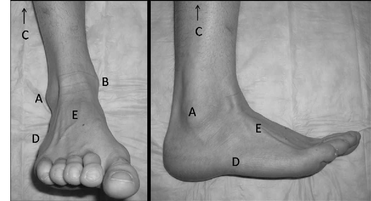 Figure 3 from Management of ankle fractures. - Semantic Scholar