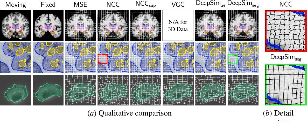 Figure 4 for Semantic similarity metrics for learned image registration