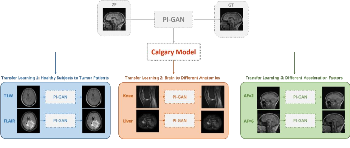 Figure 3 for Transfer Learning Enhanced Generative Adversarial Networks for Multi-Channel MRI Reconstruction