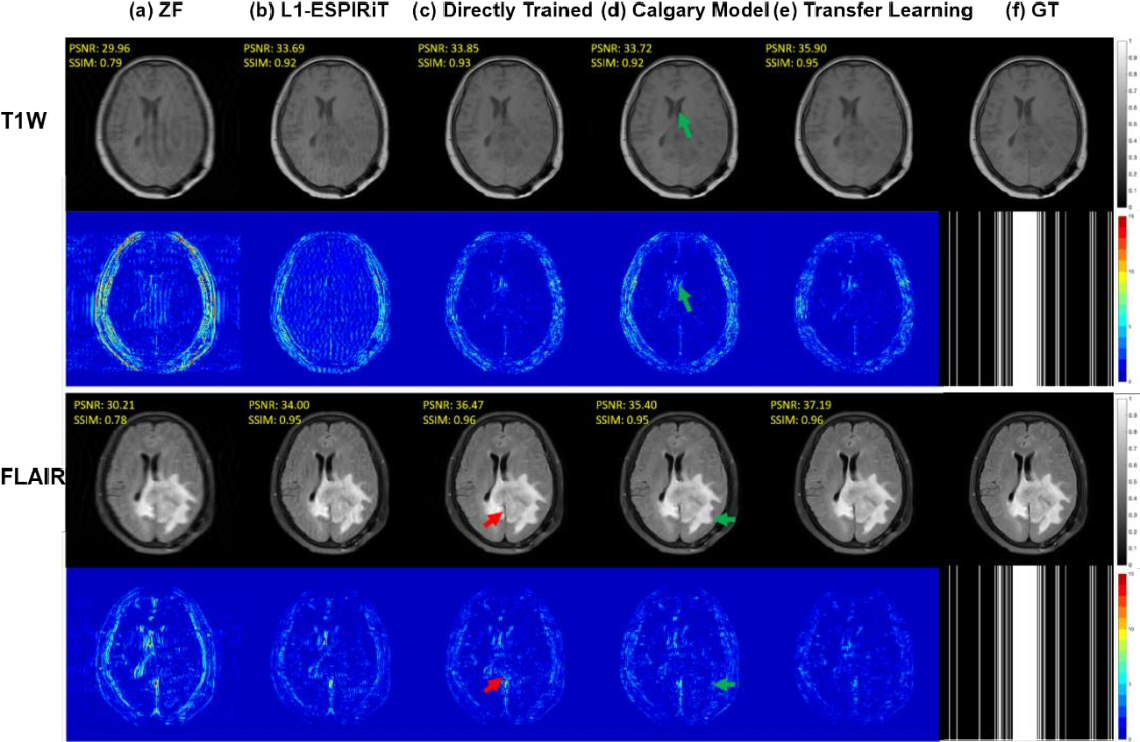 Figure 4 for Transfer Learning Enhanced Generative Adversarial Networks for Multi-Channel MRI Reconstruction