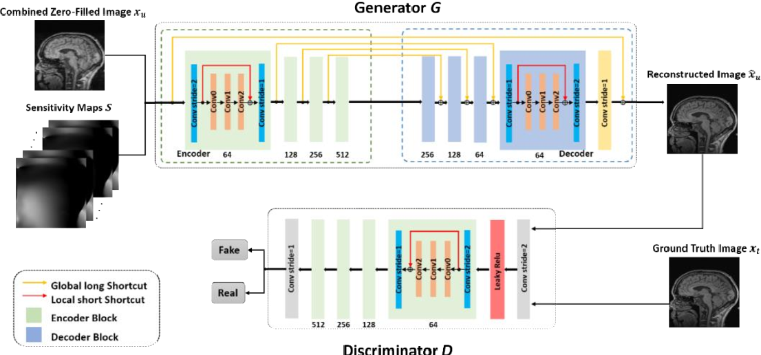Figure 1 for Transfer Learning Enhanced Generative Adversarial Networks for Multi-Channel MRI Reconstruction