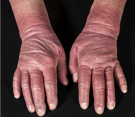 Figure 3 from Management of Atopic Hand Dermatitis ...