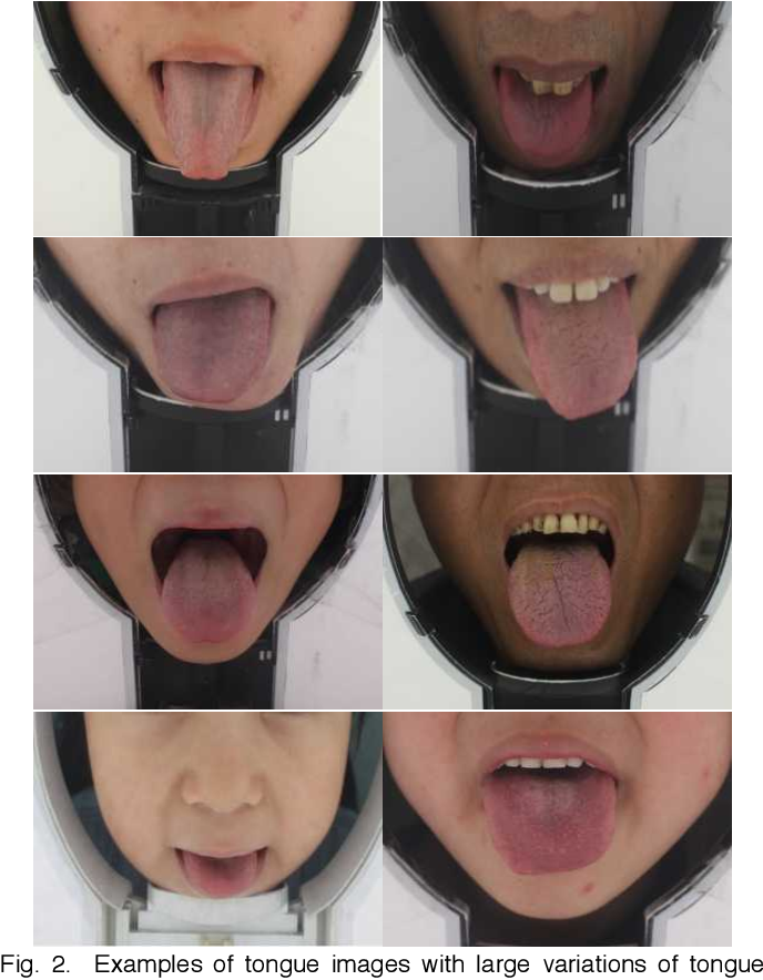 Figure 2 for Boundary Guidance Hierarchical Network for Real-Time Tongue Segmentation