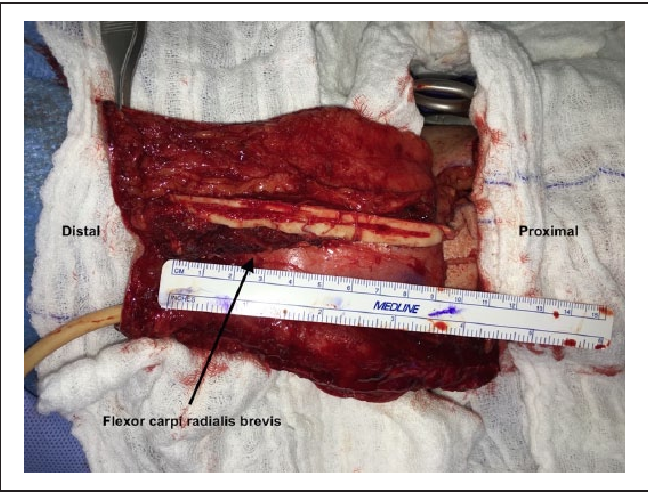 Osteocutaneous radial forearm free flap with bone perfused through ...