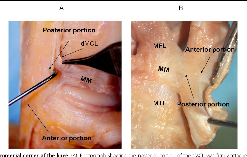 Structure of medial collateral ligament of knee joint - Semantic Scholar
