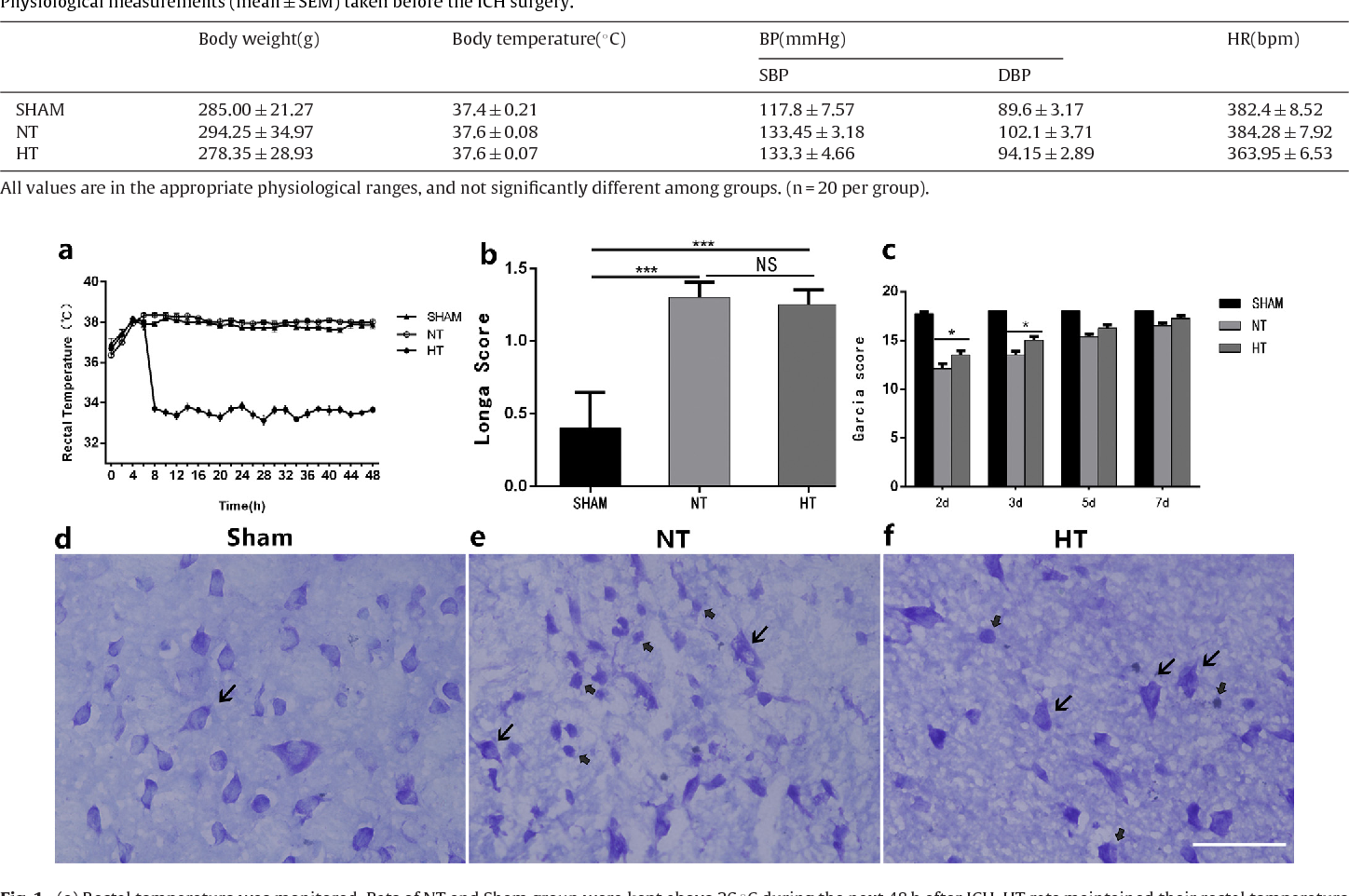 Mild Hypothermia Protects Rat Neuronal Injury After Intracerebral