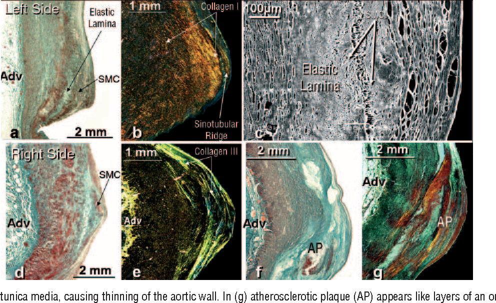 Figure 3. Frontal histological sections stained with Masson trichrome (a, d, f), picrosirius red under polarized light (b, and g) and electron scanning (c) of the sinotubular ridge and left periostial aortic wall (ac) and right (d-g). Note that the sinotubular ridge of the left coronary artery (a, b) has a greater number of smooth muscle cells and type I collagen fibers under polarized light (red-yellow in b) than the right coronary artery (d, e). Under scanning electron microscopy, we can see that the smooth muscle cells (SMC) in the left sinotubular ridge (c) overlap within a dense extracellular matrix, strengthening this part of the coronary ostium. In (f) atherosclerotic plaque (AP) can be seen in the sinotubular ridge of a right coronary artery that affects the