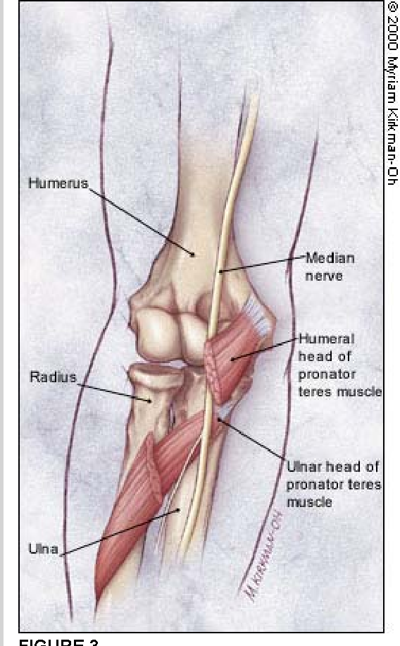 Figure 3 from Evaluation of overuse elbow injuries. - Semantic Scholar