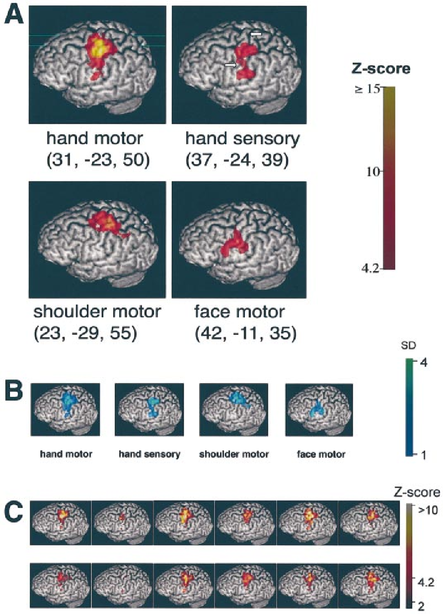 Improved understanding of cortical injury by incorporating measures ...