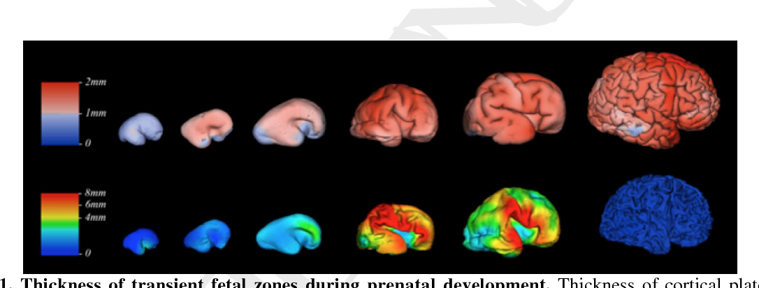 Figure 1 from Exploring early human brain development with
