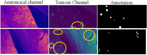 Figure 1 for METGAN: Generative Tumour Inpainting and Modality Synthesis in Light Sheet Microscopy